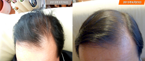 MaxRoot Hair Growth, no dandruff